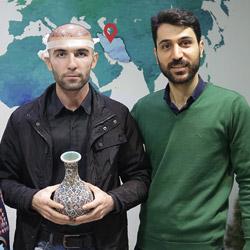 تجربة زراعة الشعر في ايران لمريض روسي