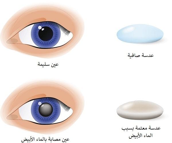 عملية سحب الماء الابيض من العين
