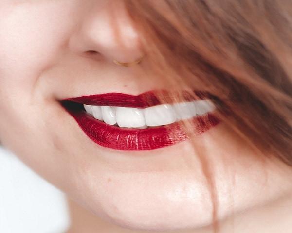 فوائد فينير الاسنان