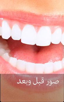 صور قبل وبعد زراعة الاسنان في ايران