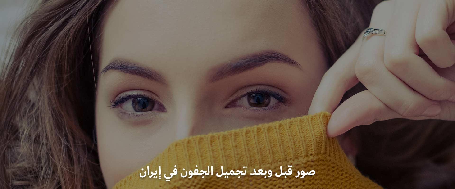 صور قبل وبعد شد الجفون في ايران