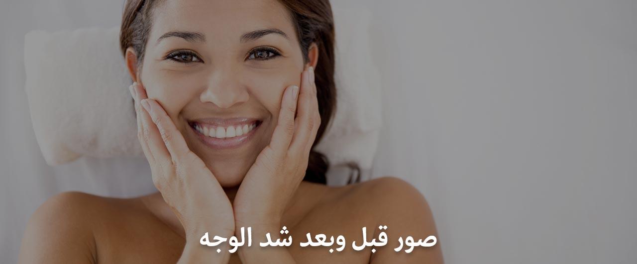 صور قبل وبعد شد الوجه في ايران