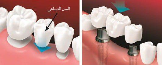 مقارنة جسر الاسنان التقليدي وجسر الاسنان المدعوم بزراعة الاسنان