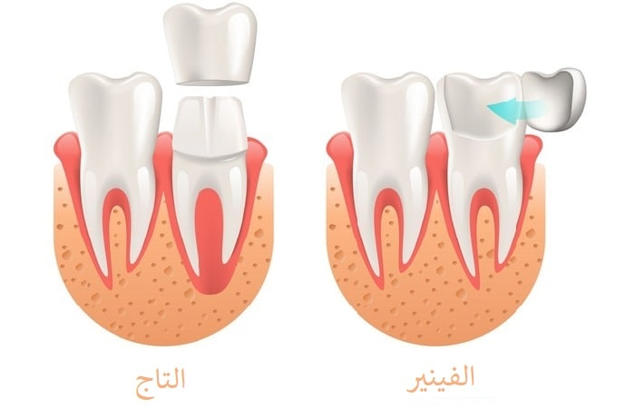 مقارنة بين فينير الاسنان وتيجان الاسنان