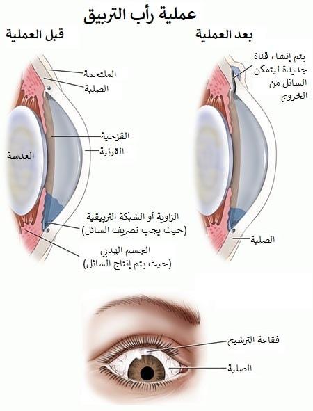 جراحة تصريف الماء الابيض من العين