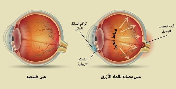 عين طبيعية وعين مصابة بداء الماء الازرق