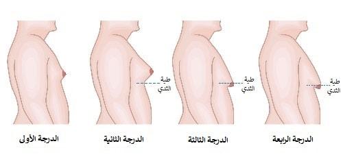 عملية ازالة التثدي عند الرجال في ايران