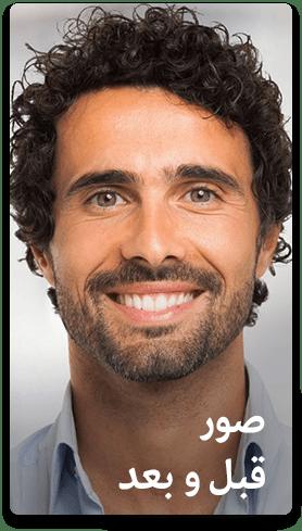 صور قبل وبعد تجميل الاسنان في ايران