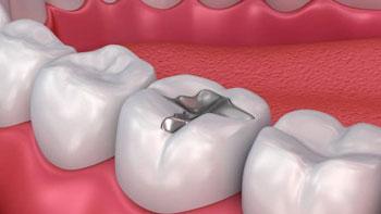 حشي الاسنان في ايران