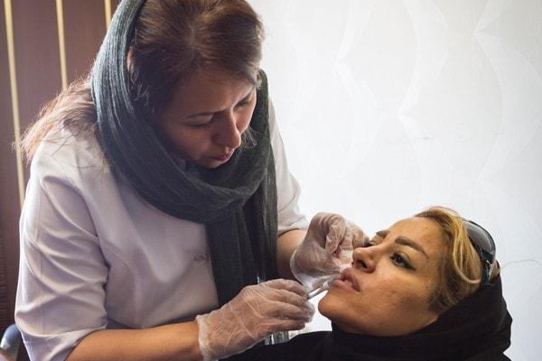 افضل دكتور حقن الفيلر في ايران