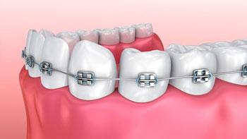 تقويم الاسنان في ايران