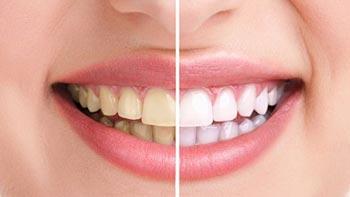 تبييض الاسنان في ايران