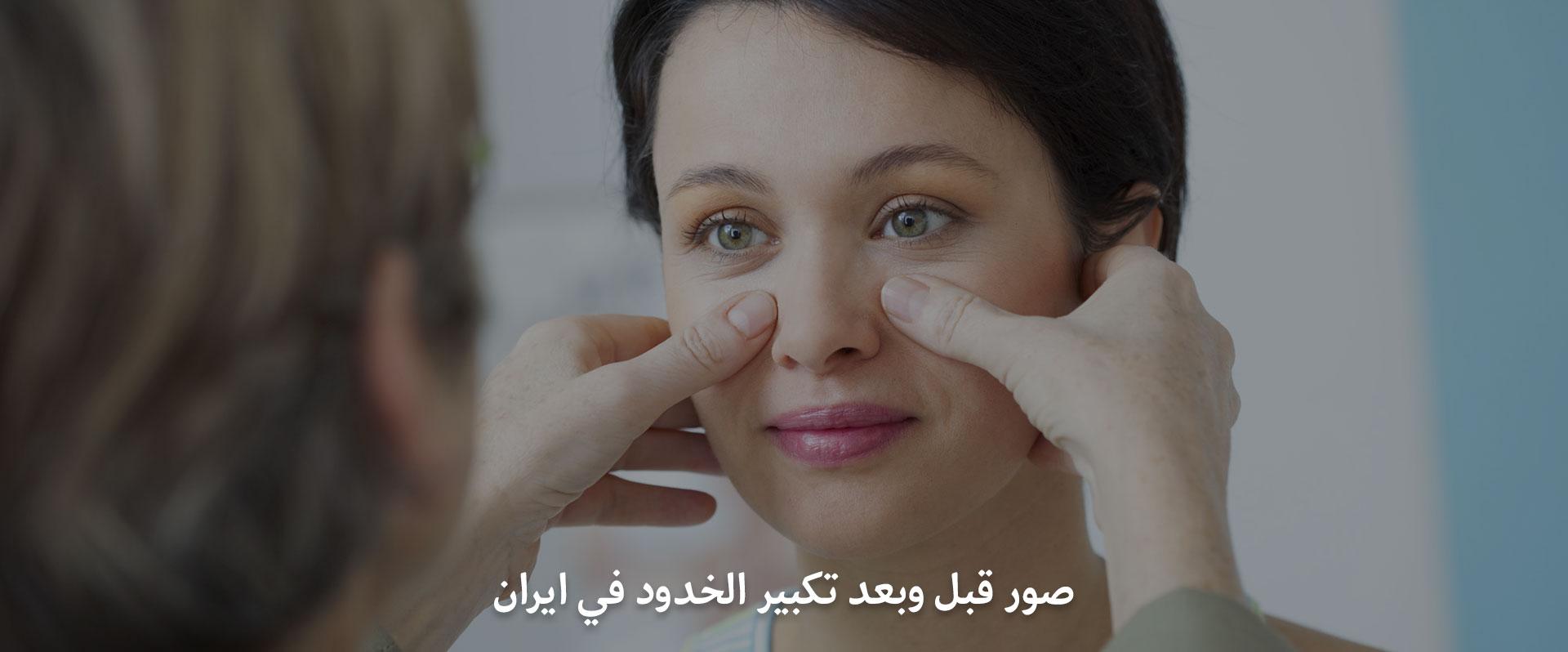 صور قبل وبعد تكبير الخدود في ايران