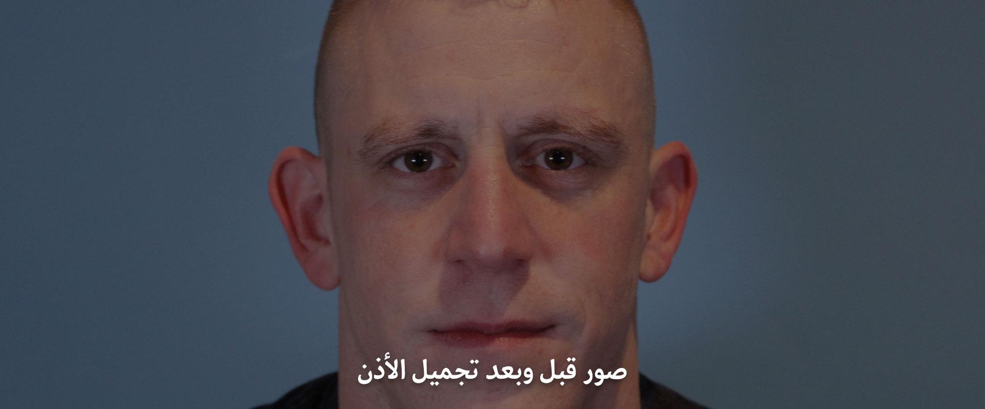 صور قبل وبعد تجميل الاذن في ايران