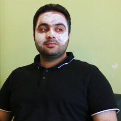 تجربة ازالة الشعر بالليزر في ايران لشاب من أفغانستان