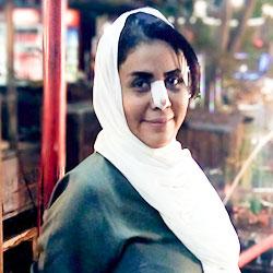 تجربة تجميل الانف في ايران: سميحة من عمان