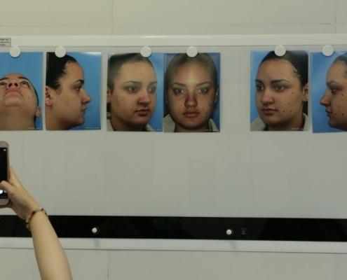 تحضير مريضة اسبانية لعملية الانف في ايران