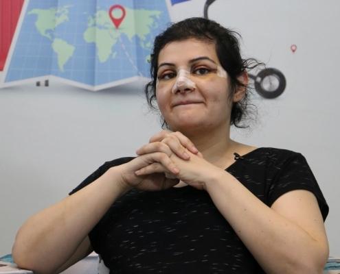 تجربة سميرا من الدانمارك مع تجميل الانف في ايران