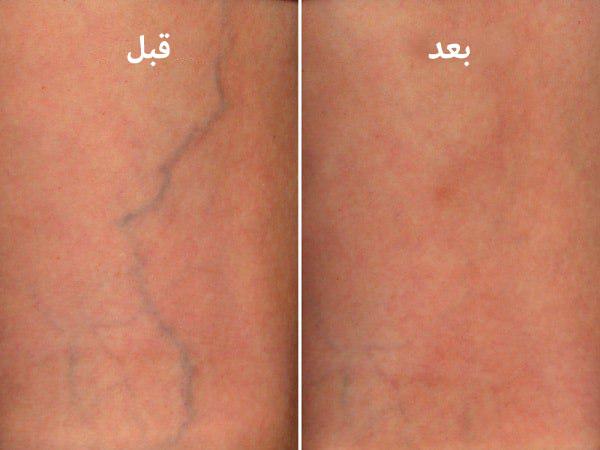 قبل وبعد العلاج التصلبي في ايران