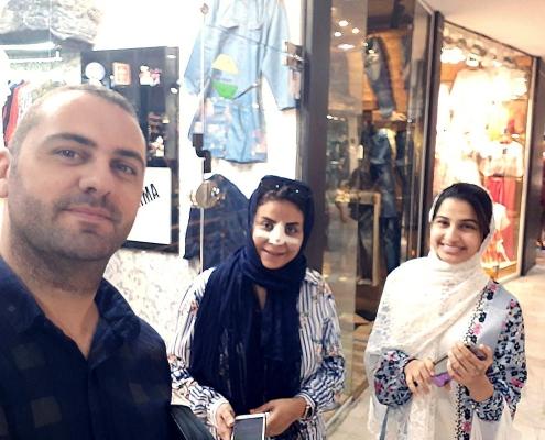 تجربة فينير الاسنان في ايران لشابة من ايران