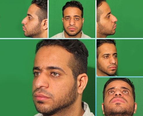 صور قبل وبعد تجميل الانف في ايران لمصعب من عمان