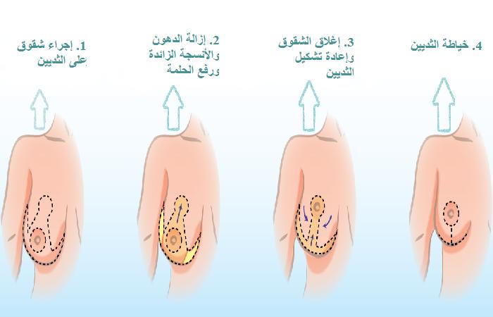 كيفية إجراء تصغير الثدي في ايران