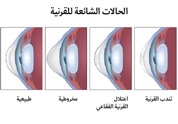 امراض العين التي تستدعي زراعة القرنية