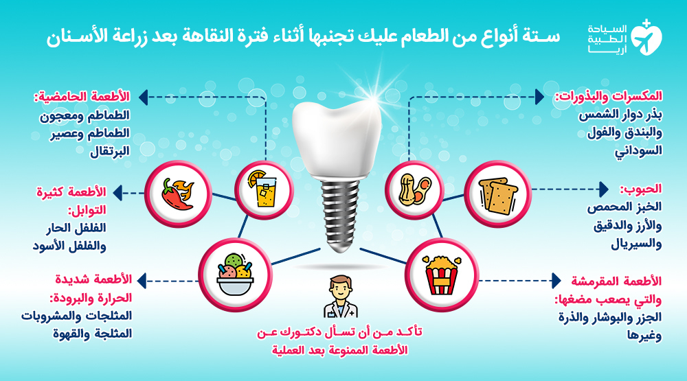 أنواع الطعام الممنوعة بعد زراعة الاسنان