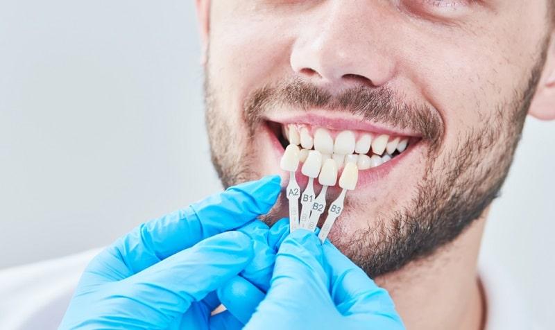 اختيار لون فينير الاسنان بما يتناسب مع لون الاسنان الطبيعية