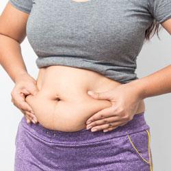 تقليل التورم بعد شفط الدهون
