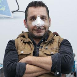 تجربة تجميل الانف في ايران لمريض من العراق