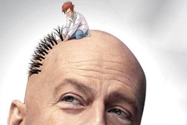 لماذا ايران من أجل اجراء زراعة الشعر