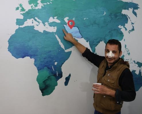 عملية الانف وتجميل الاسنان في ايران لمريض من العراق