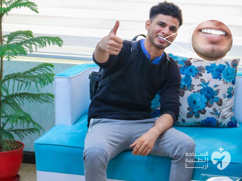 فينير الاسنان في ايران