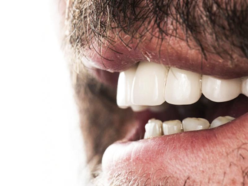 مزايا فينير الاسنان