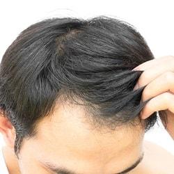 تساقط الشعر أسبابه وعلاجاته