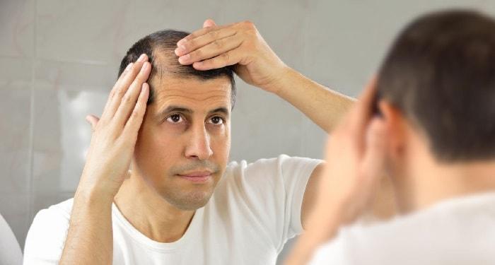 مشكلة تساقط الشعر عند الرجال