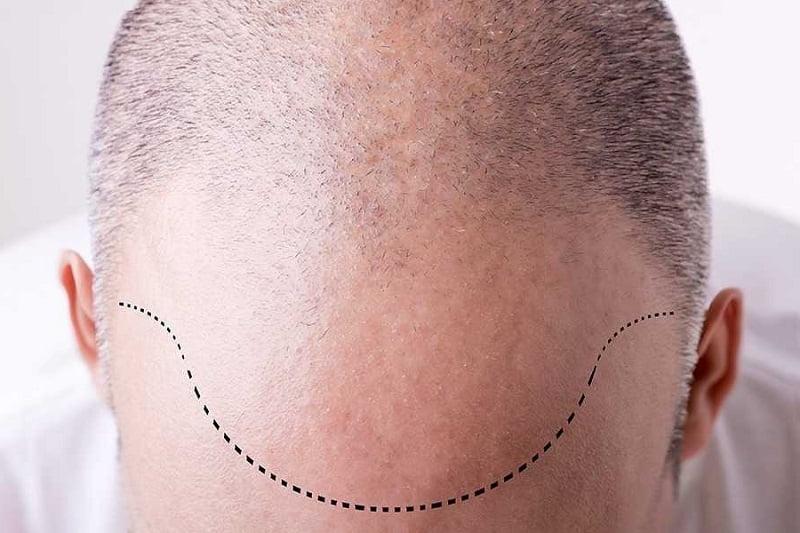 تخفيض خط الشعر باستخدام زراعة الشعر