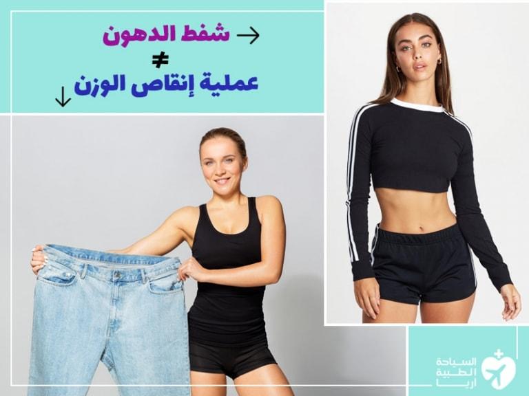 خرافات عن شفط الدهون