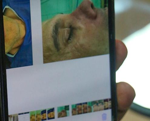 دكتور من العراق يجري عملية الانف في ايران