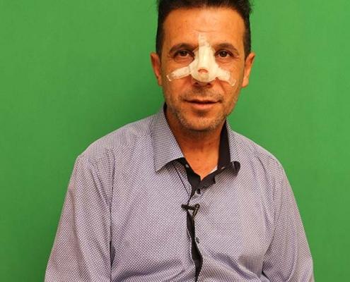 دكتور عراقي يجري عملية الانف في ايران