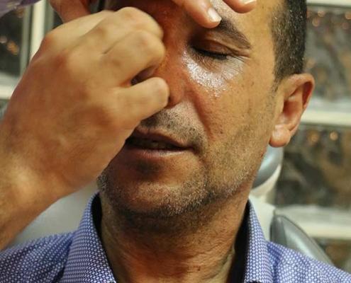 مهدي من العراق في عيادة جراح تجميل الانف في ايران