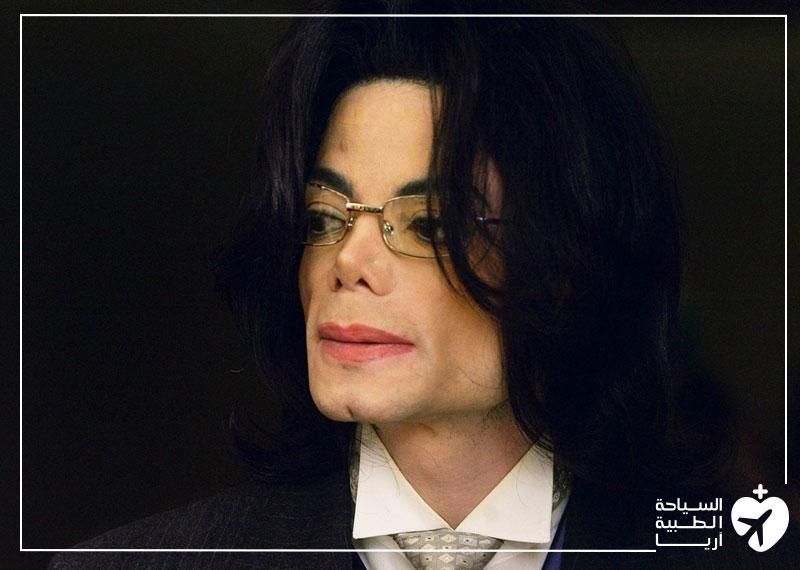 مايكل جاكسون تجميل الانف