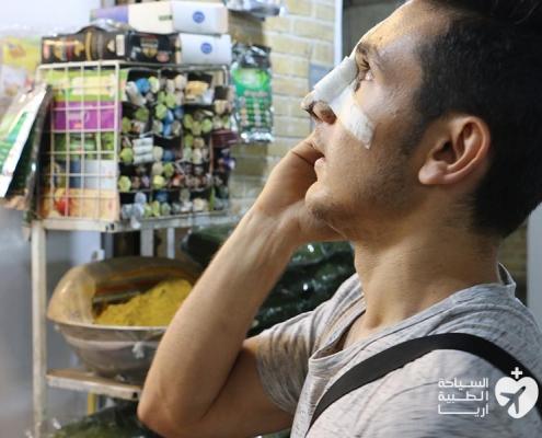 تجربة تجميل الانف في ايران فاقت التوقعات