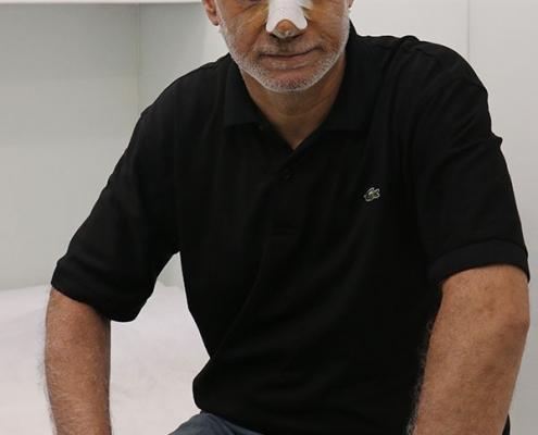 عملية تصحيح انحرف الحاجز الانفي في ايران لرجل من العراق