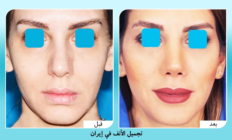 قبل وبعد تجميل الانف في ايران الدكتور أمين آمالي