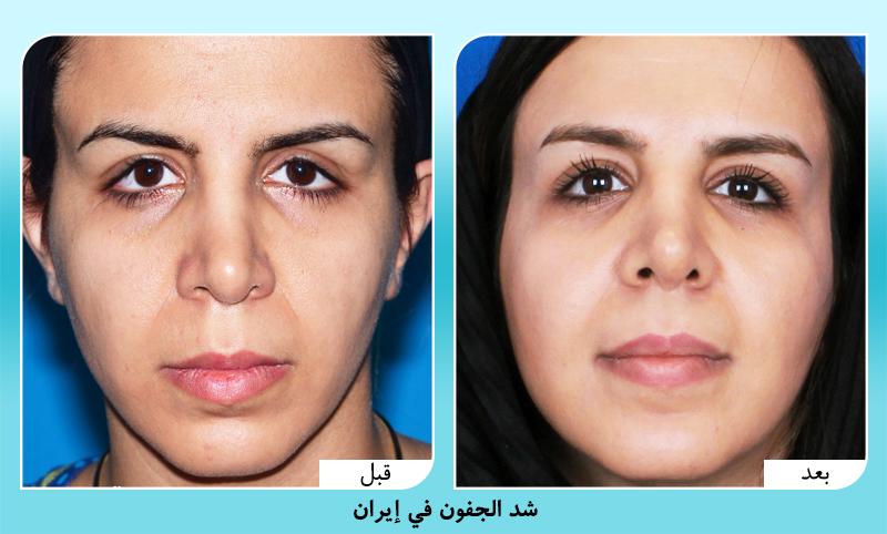 قبل وبعد تجميل الجفون في ايران الدكتور أمين آمالي
