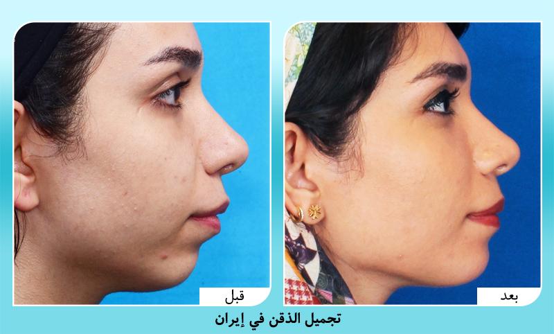 الدكتور أمين آمالي قبل وبعد تجميل الذقن في ايران