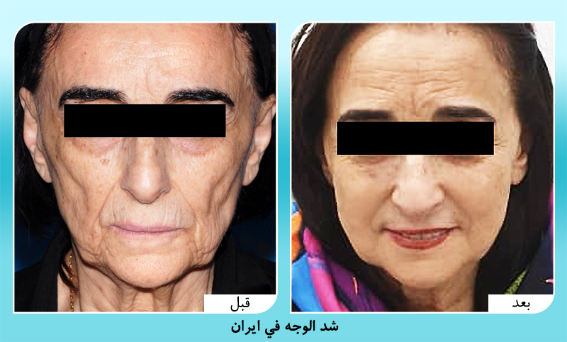 قبل وبعد شد الوجه في ايران الدكتور شاهرخ عطاريان