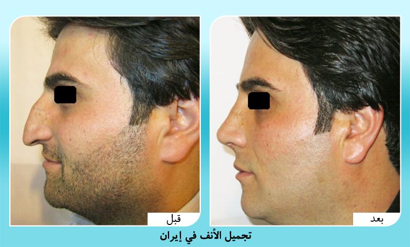 قبل وبعد تجميل الانف في ايران الدكتور علي بصام